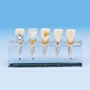 Endodoncia (END)