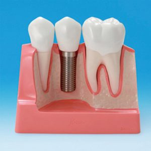 Implantes (IMP)