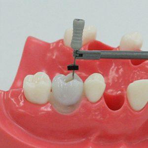 3. Modelo de Endodoncia