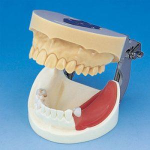 8. Modelos de Implantes